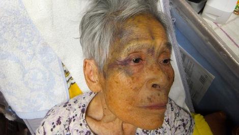 260417fusako-2.JPGタンコブの内出血が下がって来てひどい顔になってます